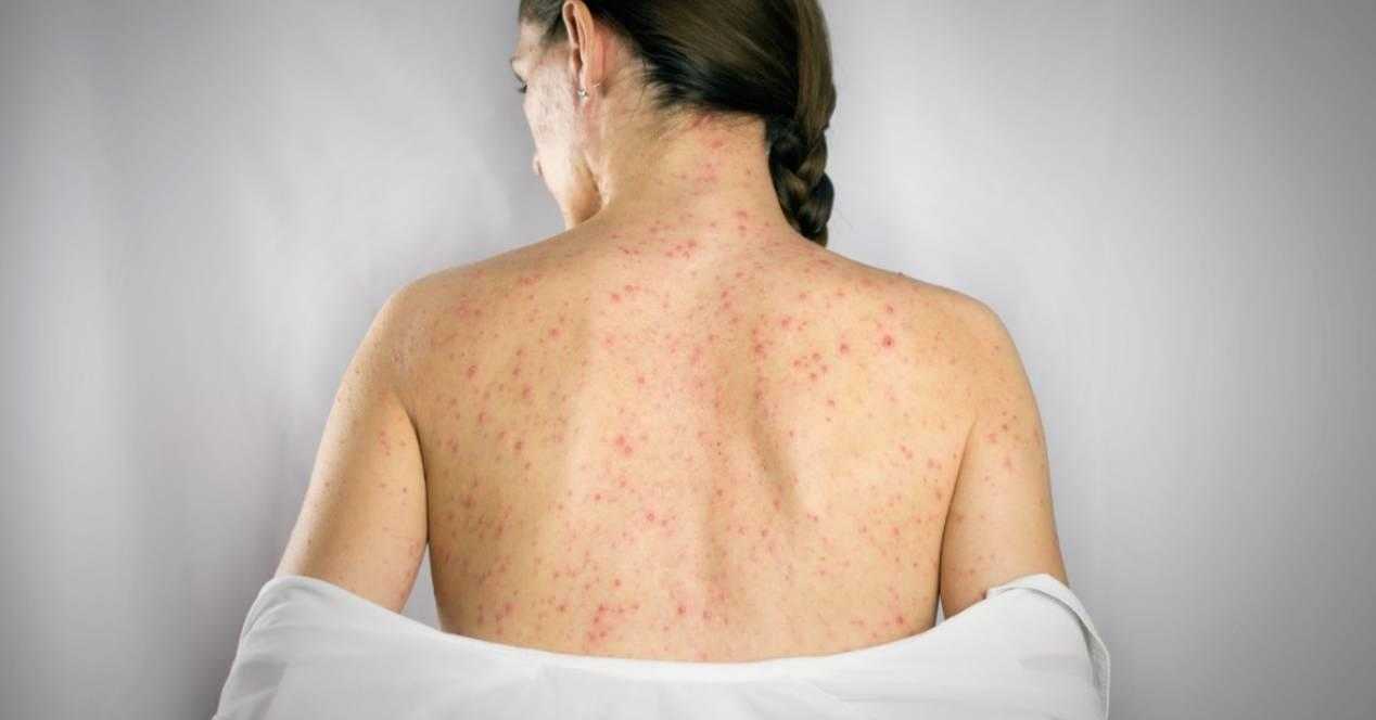 mujer con herpes zoster